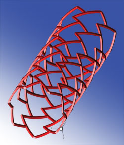 3D model of a stent